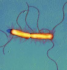 "Thomas Deerinck: ""Proteus Vulgarus Bacteria, SEM"""
